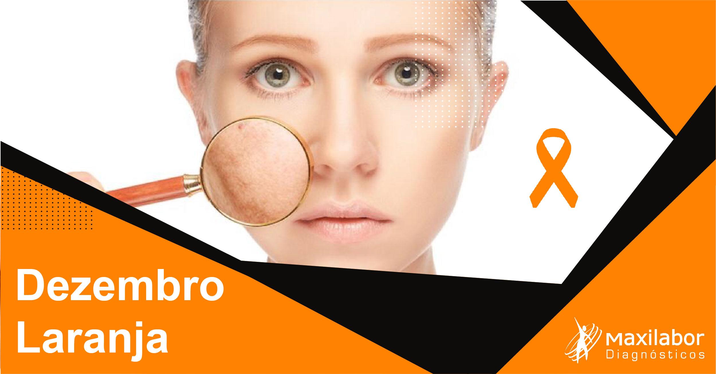 Dezembro Laranja – conscientização sobre o câncer de pele